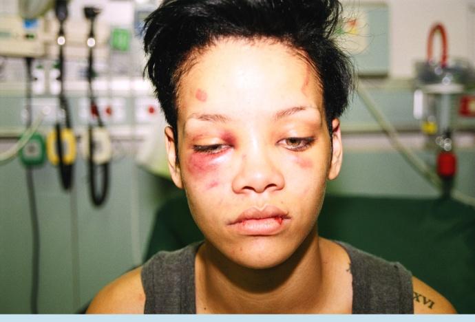 O rosto de Rihanna após a agressão de Chris Brown. Sim, é uma imagem forte, mas precisa ser mostrada para que nunca se esqueça a violência pela qual passam milhares de mulheres no mundo que não tem tanta visibilidade quanto a artista